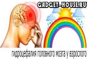 гидроцефалия головного мозга, признаки гидроцефалии, симптомы